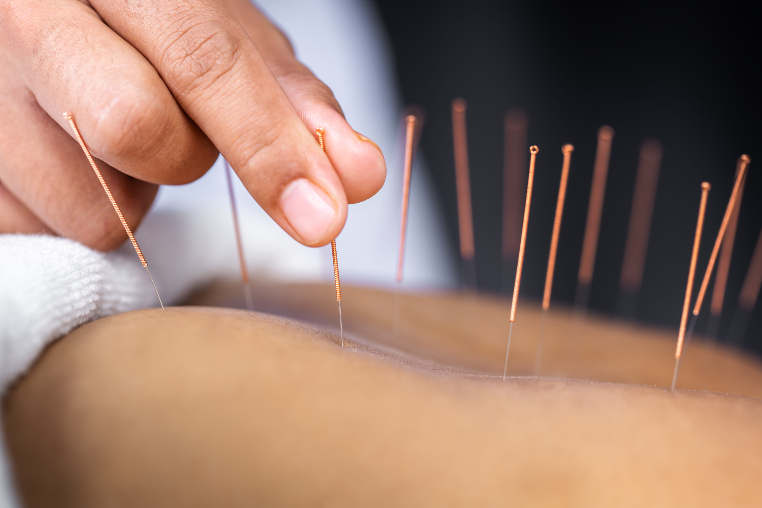 ACUPUNCTURE | kinetichealth