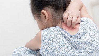 Childhood Eczema